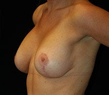 Breast Lift after 633849