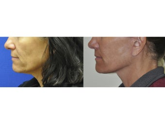 Lower Facelift/Neck LIft before 519067