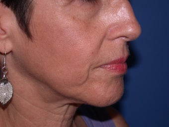 Before & After Perlane to the nasolabial folds before 48607