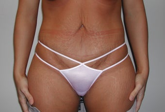 Tummy tuck after 237601