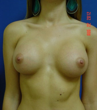 Woman in her mid twenties treated for uneven size and shape after 621531