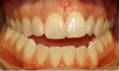 Invisalign Treatment before 359168
