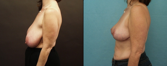 Breast Reduction  after 160575