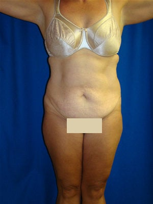 Abdominoplasty Surgery before 151308