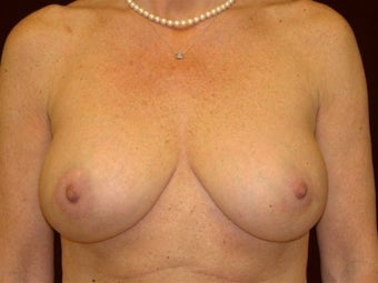 Breast augmentation after 293954