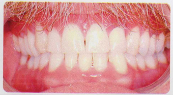 Low incisor extraction after 353445