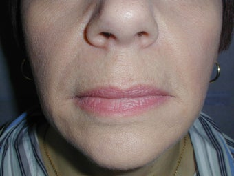 Restylane for smile lines (nasolabial folds) after 100945