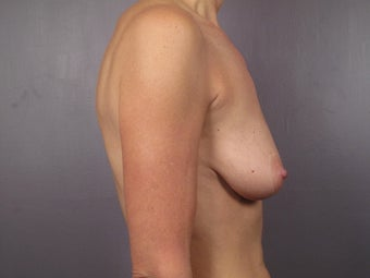 Breast Lift / Breast Augmentation  before 291053
