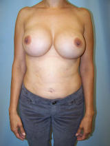Revisionary Breast Surgery before 96804