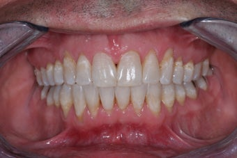Invisalign  after 372594