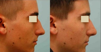 Revision/Corrective Rhinoplasty before 136563