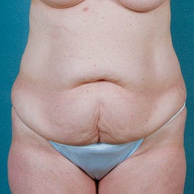 Tummy Tuck before 313076