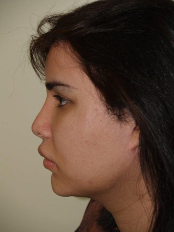 Revision Rhinoplasty before 352602