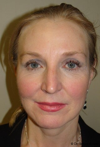 Facelift with browlift and lower blephorplasty after 617176