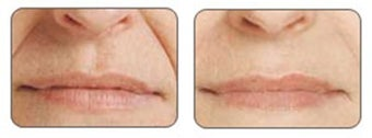 Before and after Restylane around mouth before 6290