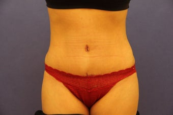 Tummy tuck after 547997