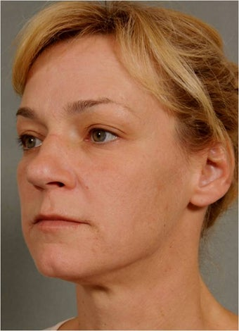 41 Year Old Female Treated for sun damage, wrinkles, and acne scars 645384