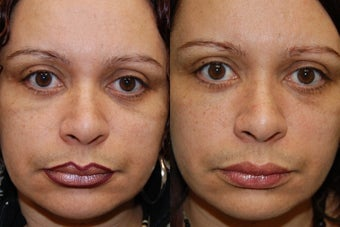 Silikon-1000, Permanent Injectable Filler for Lower Eyelid Bags before 140478