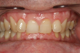 Invisalign Treatment before 92848