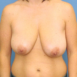 Breast reduction before 375033