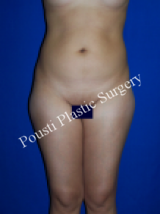 Liposuction before 633677
