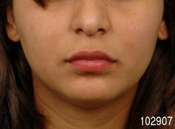 Lip Augmentation after 273489