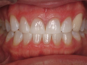 Tooth Whitening after 366619