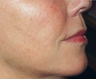 Sculptra after 370529