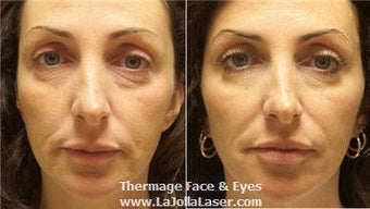 Thermage skin tightening for face and eyes before 71108