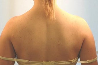 Laser Back Acne Treatment before 82961