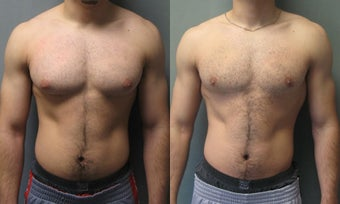 Gynecomastia before 349218