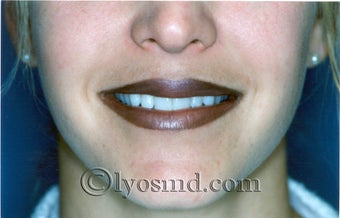 Lip Augmentation after 225580