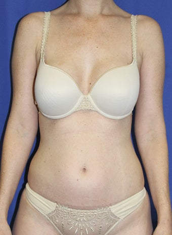Laser-assisted Liposuction before 364499