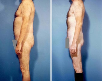 Liposuction before 636113