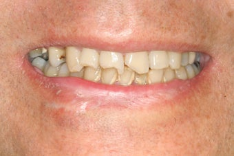Dental implants, bone graft, all porcelain crowns and veneers before 503162