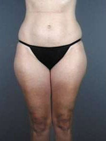 Liposuction before 470918