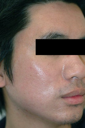 Laser Acne Treatment after 89124