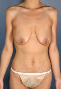 Mommy Makeover, Breast Augmentation, Breast Lift, Tummy Tuck  before 382289