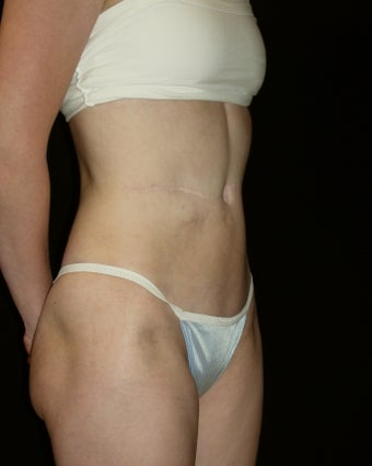 Abdominoplasty after 226266