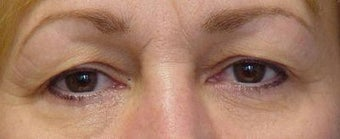 Upper Blepharoplasty before 251707