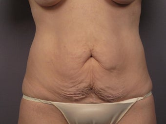 Tummy Tuck before 325636