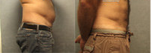 Vaser Liposelection after 99281