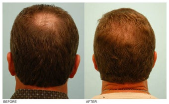 Crown (Vertex) Hair Transplant before 134768