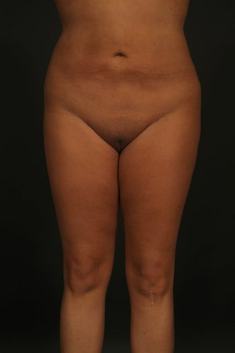Liposuction after 315578