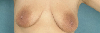 Areola Reduction and Breast Augmentation before 100248