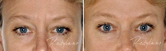 Before and after Restylane on fine lines before 6271
