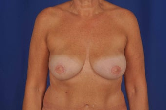 56 Year-Old Woman with Bilateral Breast Reconstruction after 647197