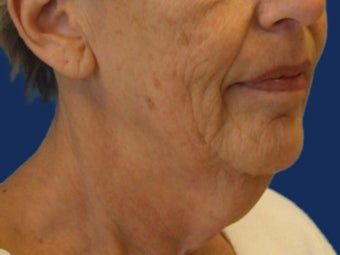 Lower Facelift and Necklift with Platysmaplasty before 243449