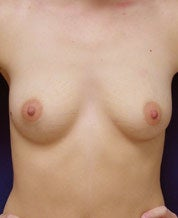 Breast Augmentation before 101308