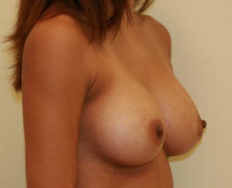 Augmentation Mammaplasty (Breast Implants) after 226509